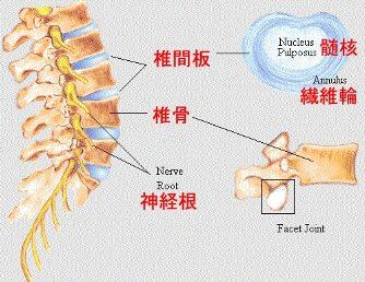椎間板ヘルニアとは?図1